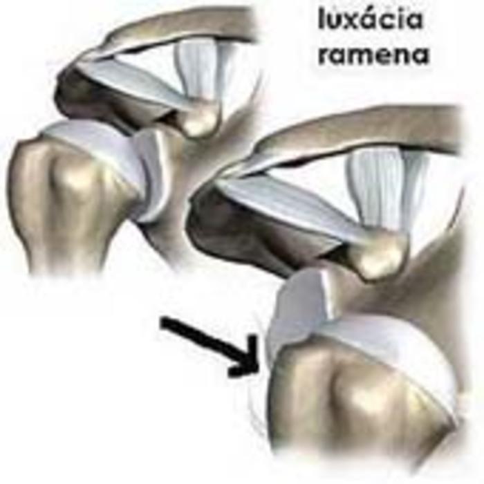 vykĺbenie luxácia ramena